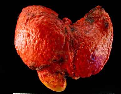 https://miradasencontradas.files.wordpress.com/2018/09/carcinoma-hepatocelular.jpg?w=640